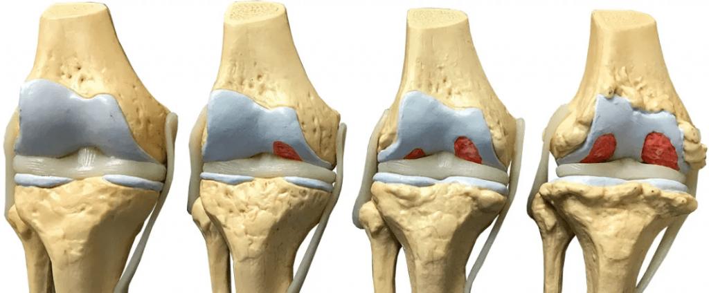 leziuni renale în bolile difuzive ale țesutului conjunctiv cum să alinați inflamația în articulația unui deget