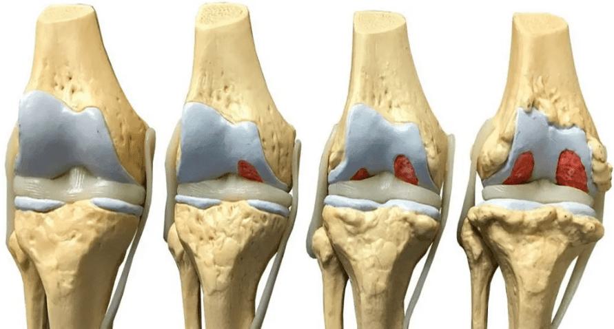 Deformând artroza grade a articulațiilor șoldului - cooperativadaciaunita.ro