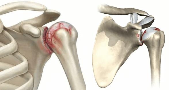 tratamentul artrozei genunchiului de gradul II cu argilă